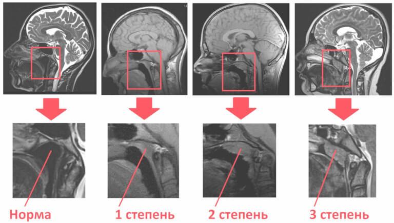 Что покажет рентген носоглотки