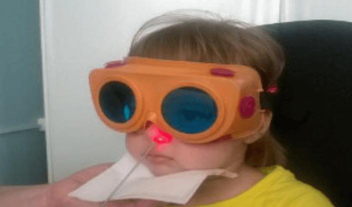 Лечение аденоидита у детей физиотерапия