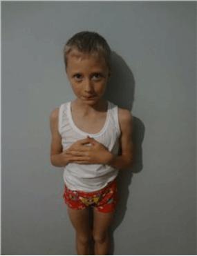 Болезнетворное влияние аденоидов: вес ребенка (чрезмерная полнота/ неестественная худощавость)