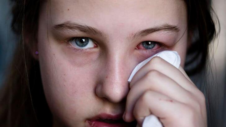 Аденоидовирусная инфекция в офтальмологии заболевания глаз при аденоидите у детей