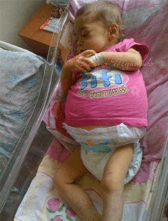 Фото ребенка с тяжелой стадией печеночной деструкции, страдающего на сопутствующий аденоидит