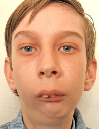 Изменение лицевого скелета