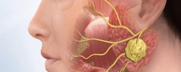 О важности здоровой, без аденоидного присутствия, слюны