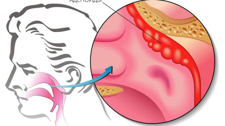 Почему происходит воспаление аденоидов?: подробная патоклиника