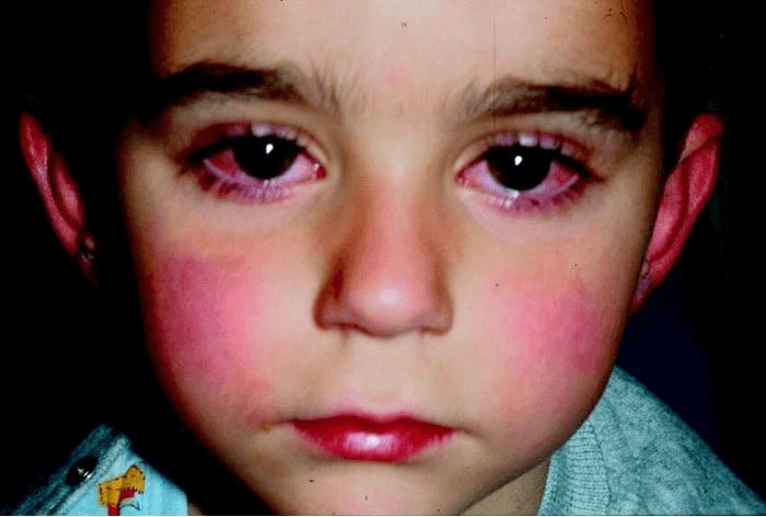 проблема, с заболеваниями глаз у ребенка при воспаленных носовых миндалинах