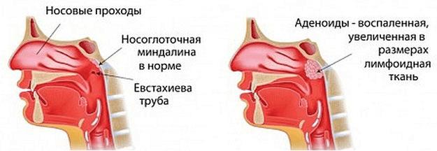 Кратко и понятно об аденоидах в носу в анатомическом аспекте: норма, патология