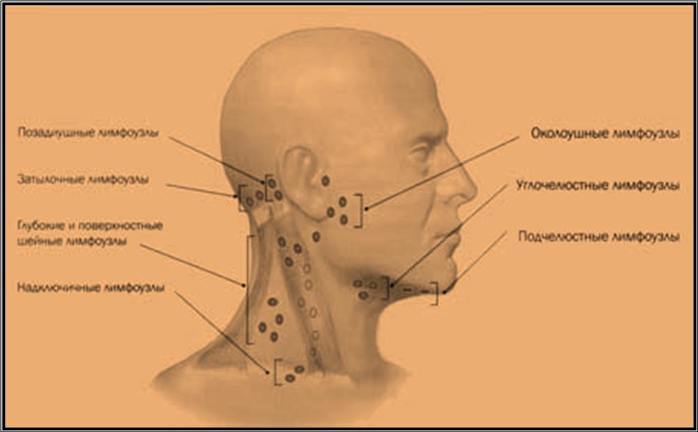 Воспаление лимфоузлов при аденоидах