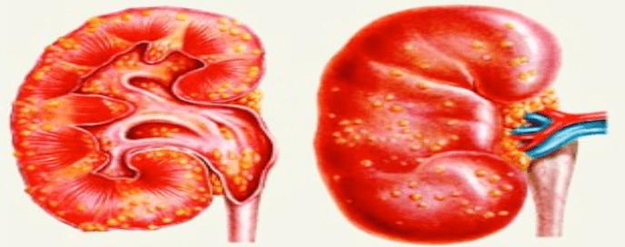 Заболевание почек при аденоидах