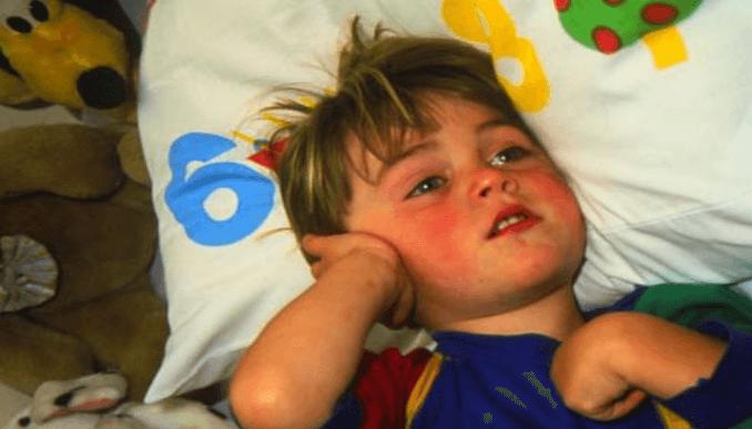 Заболевания лимфоузлов при аденоидах