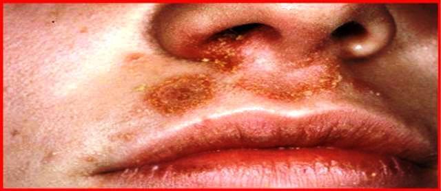 Гнойный экссудат из носовых проходов, с поражением околоносового кожного эпидермиса