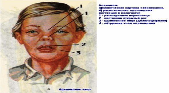 Носоглоточный аденоидит