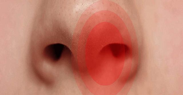 Лечение аденоидов мазью туя