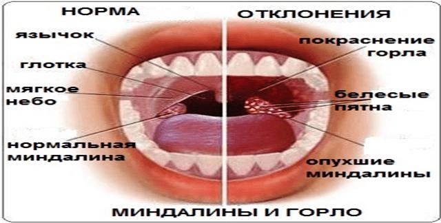 Гипер воспалённые аденоиды в детской носоглотке