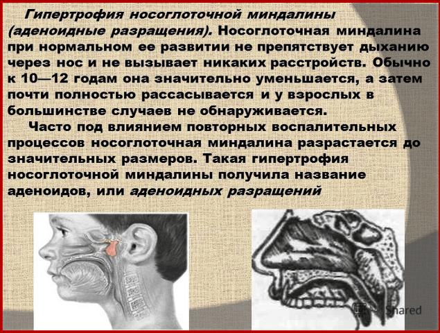 Гипертрофия носоглоточной миндалины