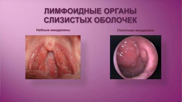 Аденоиды и миндалины