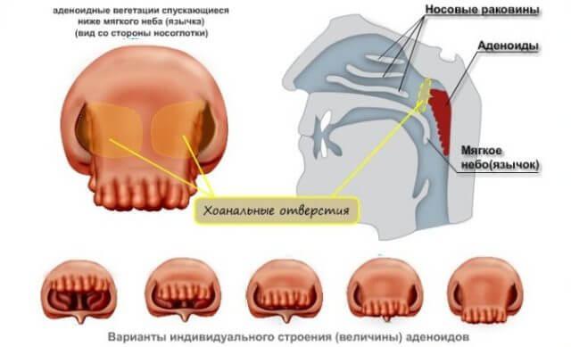 Гипертрофические аденоиды