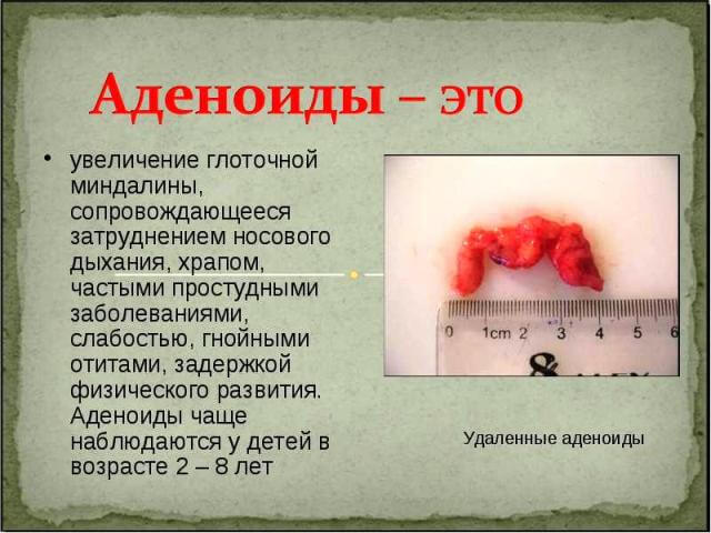 Как выглядят удаленные аденоиды